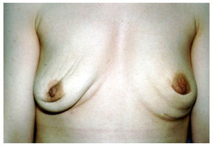 breast after  implant removal