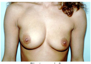 ruptured breast